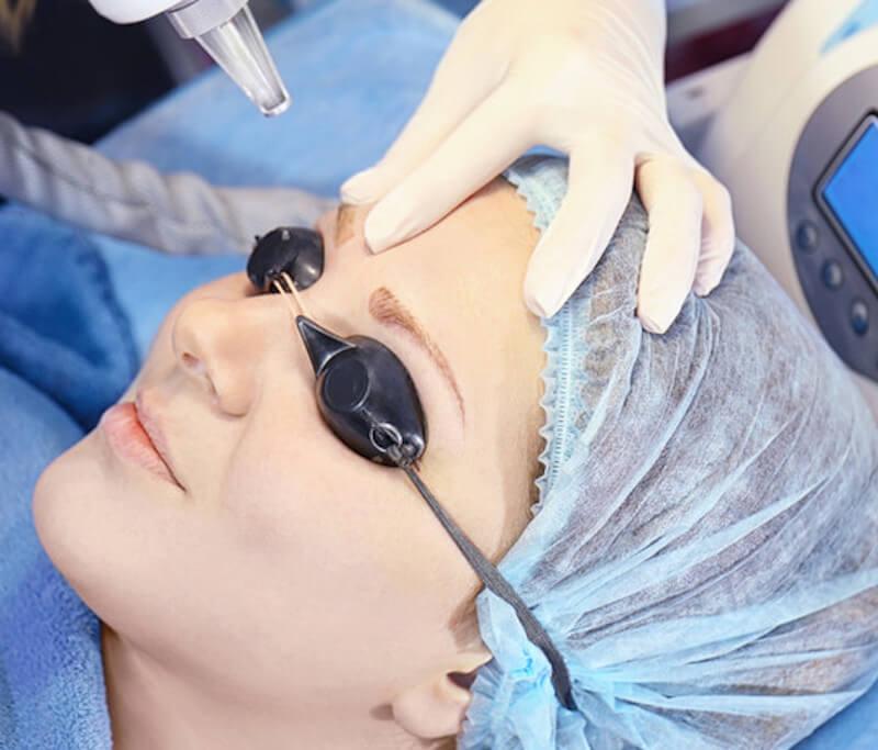 eliminacion laser de cejas micropigmentacion
