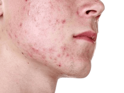 Dermoestética-láser-Quito-Ecuador